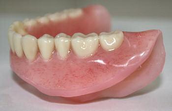 proteza elastica dentara
