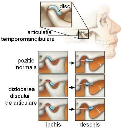 Osteoartrita. Simptome, cauze și tratament